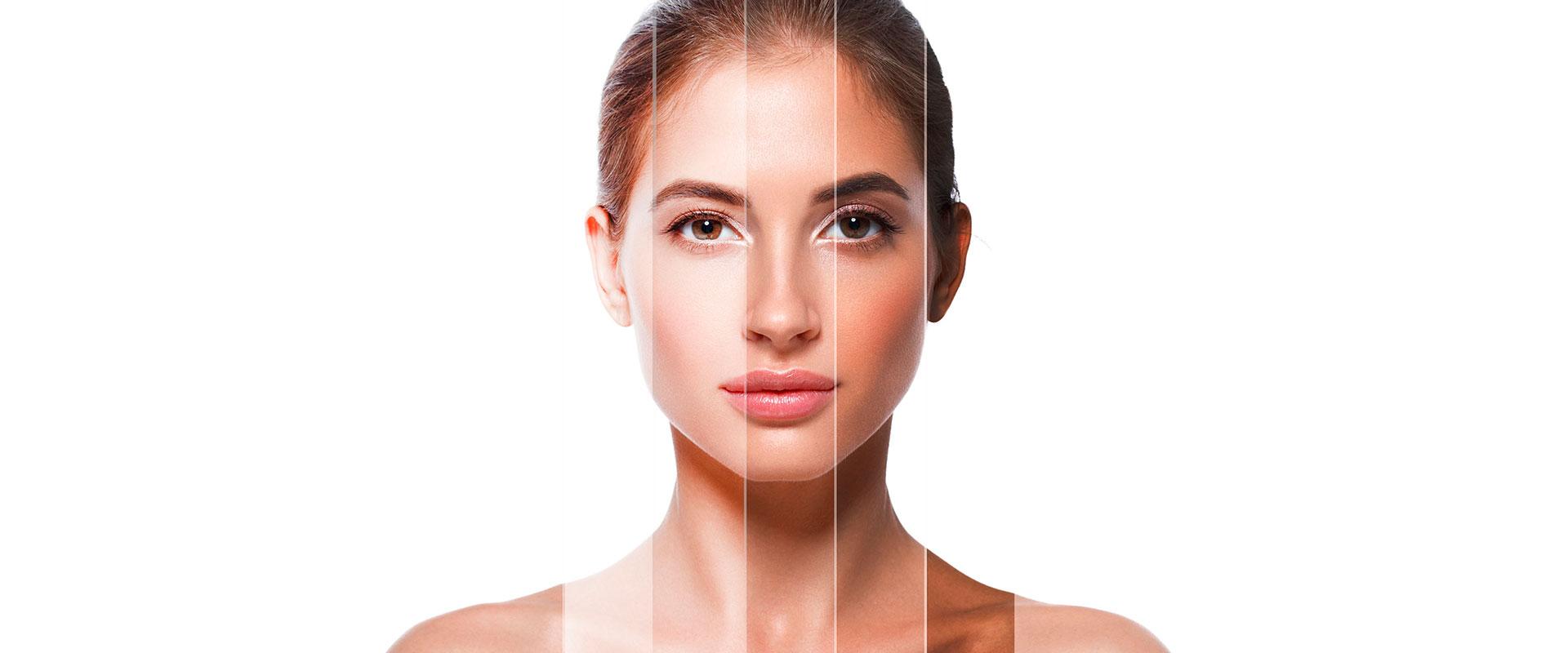 Mujer con varios tonos en la piel de su rostro.
