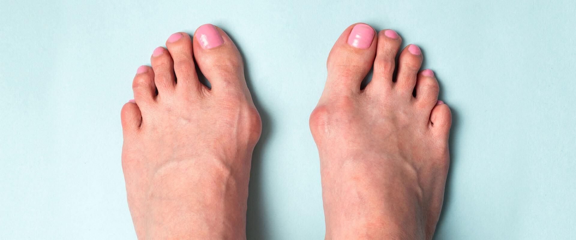 ¿Dolor en el dedo gordo del pie? Puede ser un juanete